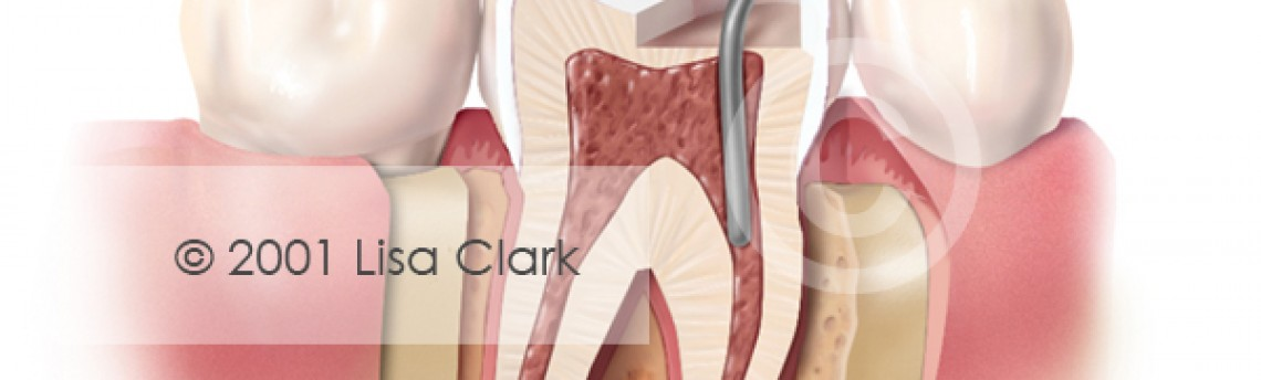Dental Retention Pin