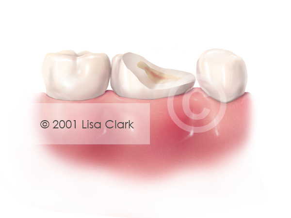 Dental Post 1: Damaged Tooth