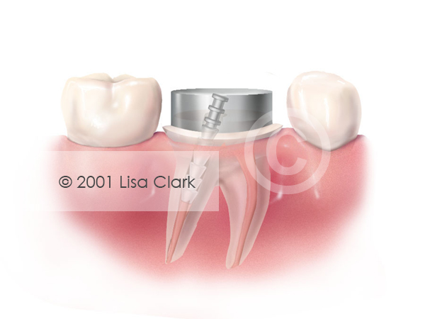 Dental Post 1: Build Up Material in Place