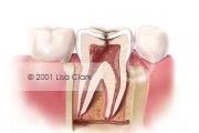 Root Canal: Cross Section of Tooth Requiring Root Canal