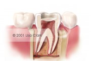 Root Canal: Enamel and Dentin Removed