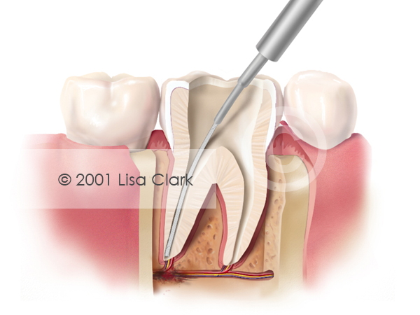 Root Canal: Pulp Removed