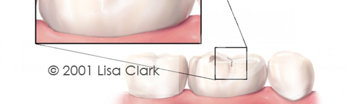 Sealants:  Tooth with Grooves in Enamel