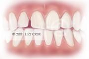 Dental Veneers: Teeth with Gingival Tissue Showing Gaps Between Teeth