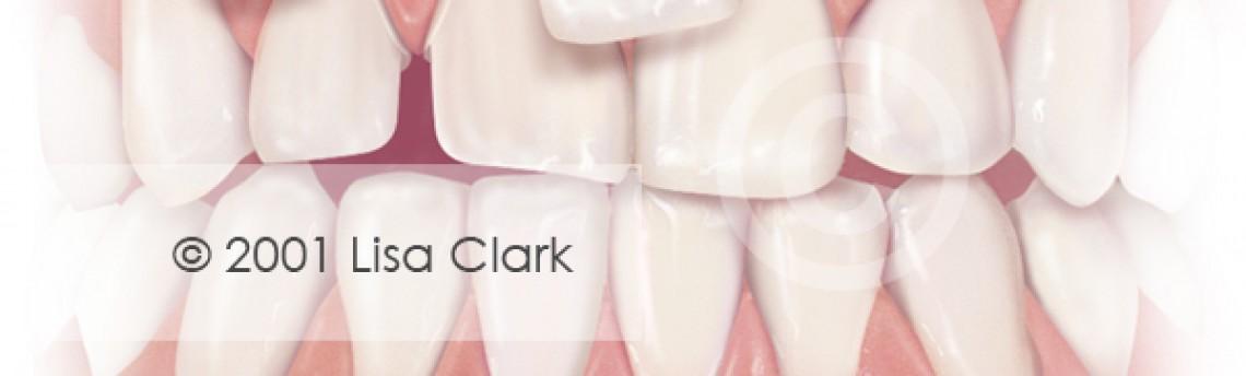 Dental Veneers: Teeth Prepared for Veneers