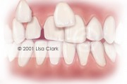 Dental Veneers: Veneers Near Final Position