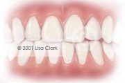 Dental Veneers: Veneers in final position