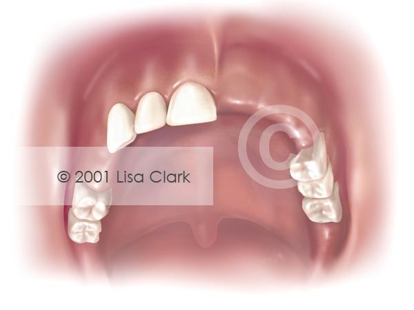 Dentures: Missing Teeth