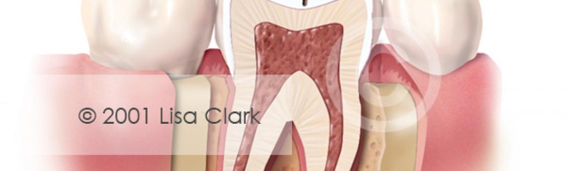 Dental Fillings 1:  Progressive Tooth Decay
