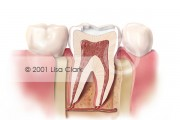 Dental Fillings 1: Tooth Prepared for Filling