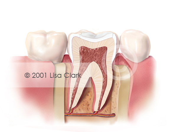 Dental Fillings 1: Tooth Filled with White Filling Material