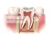 Dental Fillings 1: Tooth Filled with Silver Filling Material