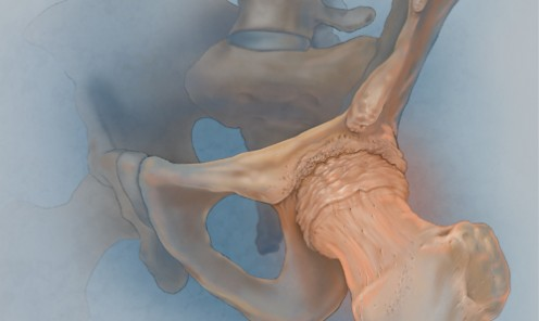 Osteoarthritis of the Hip