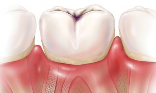 Dental Caries (Cavities)