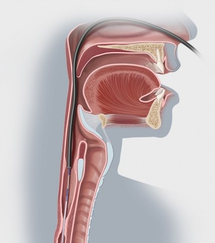 Esophageal Stricture Illustration