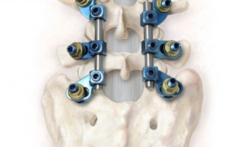Lumbar Spinal Implant