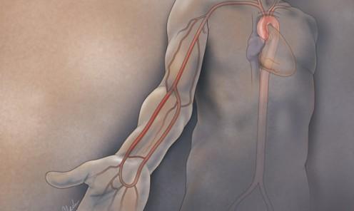Radial Artery Access for Cardiac Catheterization