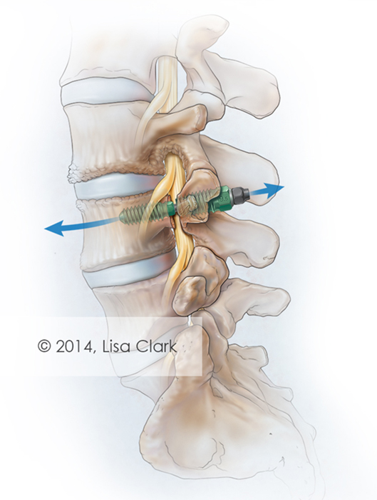 Spinal Implant Illustration
