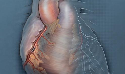 Percutaneous Heart Failure