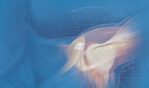 Shoulder Instability in Young Athletes