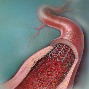 Coronary Artery Stent © Lisa Clark www.clark-illustration.com