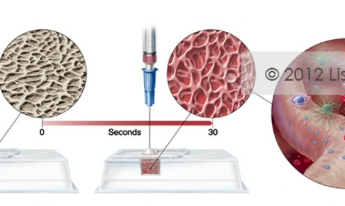Rehydrating Bone Bioscaffold