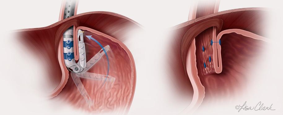 Gastro-esophageal Junction Repair | © Lisa A. Clark