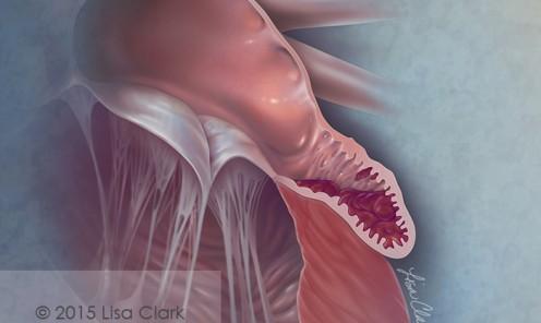 Left Atrial Appendage Thrombus ©2015 Lisa A. Clark