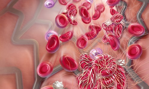 Dual Antiplatelet Therapy