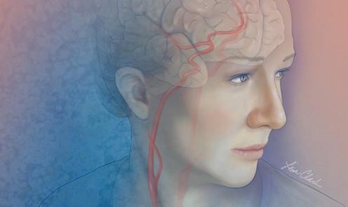 Carotid Artery Blockage Leading to a Stroke