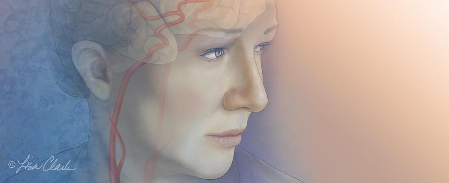 Carotid artery illustration| © Lisa A. Clark