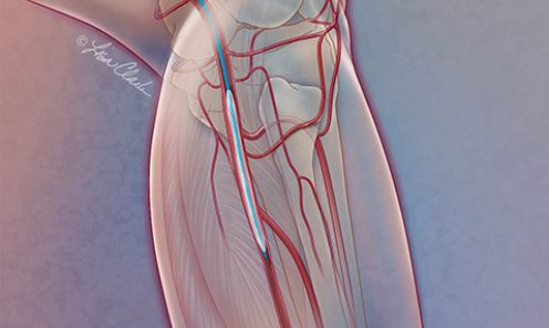 Drug-coated Balloons for Peripheral Artery Disease (PAD)