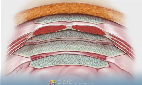 Hernia Graft Placement | © Lisa A. Clark