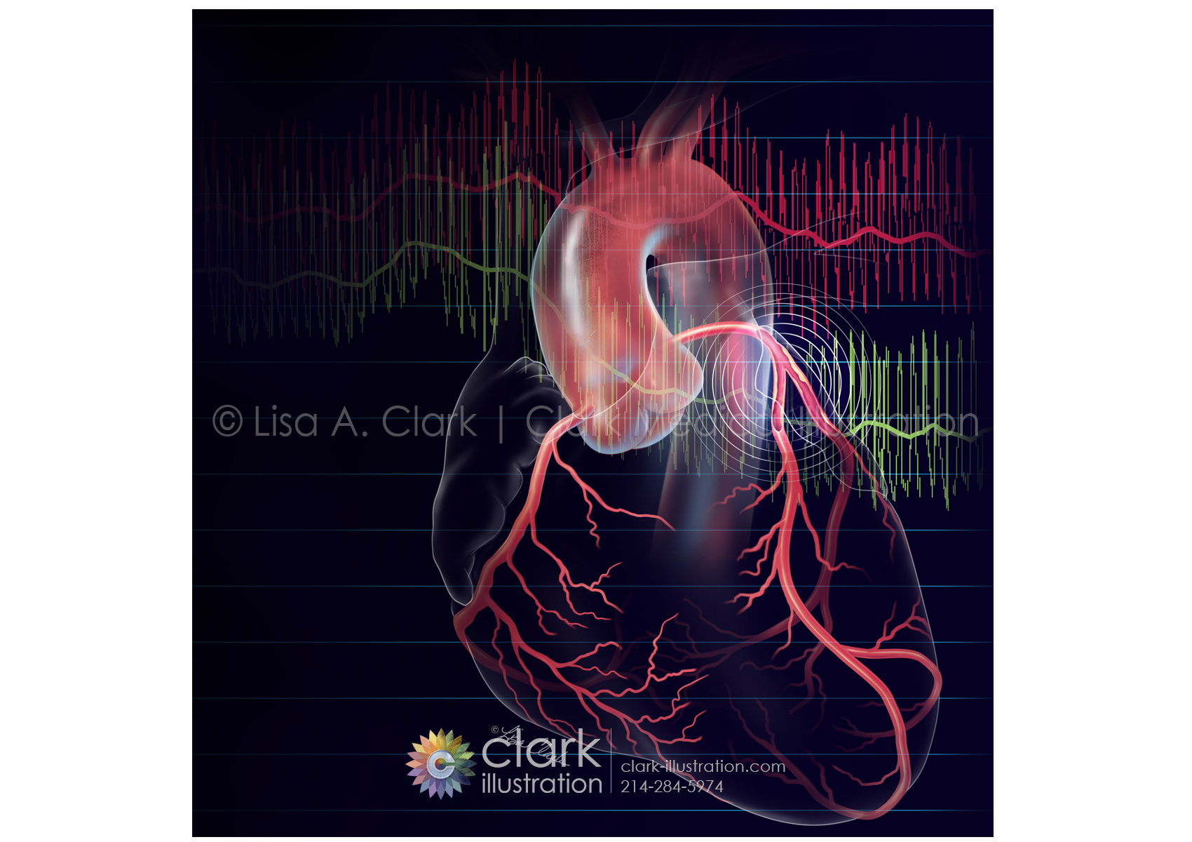 Clark Medical Illustration Portfolio Graphics Contest Full Body Muscle Diagram For Ffr And Ifr Used To Evaluate Coronary Stenosis