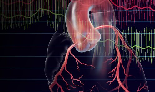 FFR and iFR used to Evaluate Coronary Stenosis