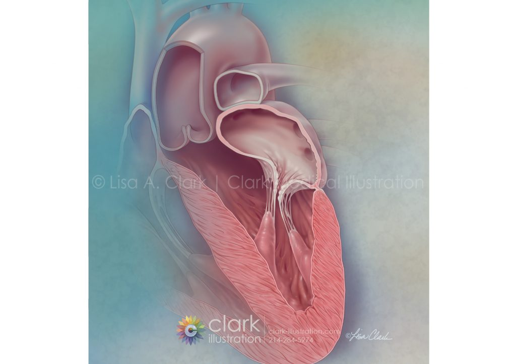 Secondary Mitral Regurgitation | © Lisa A. Clark