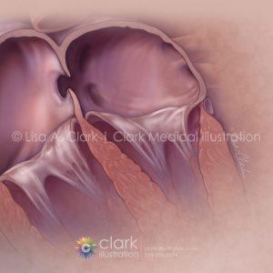Patent Foramen Ovale (PFO) Closure