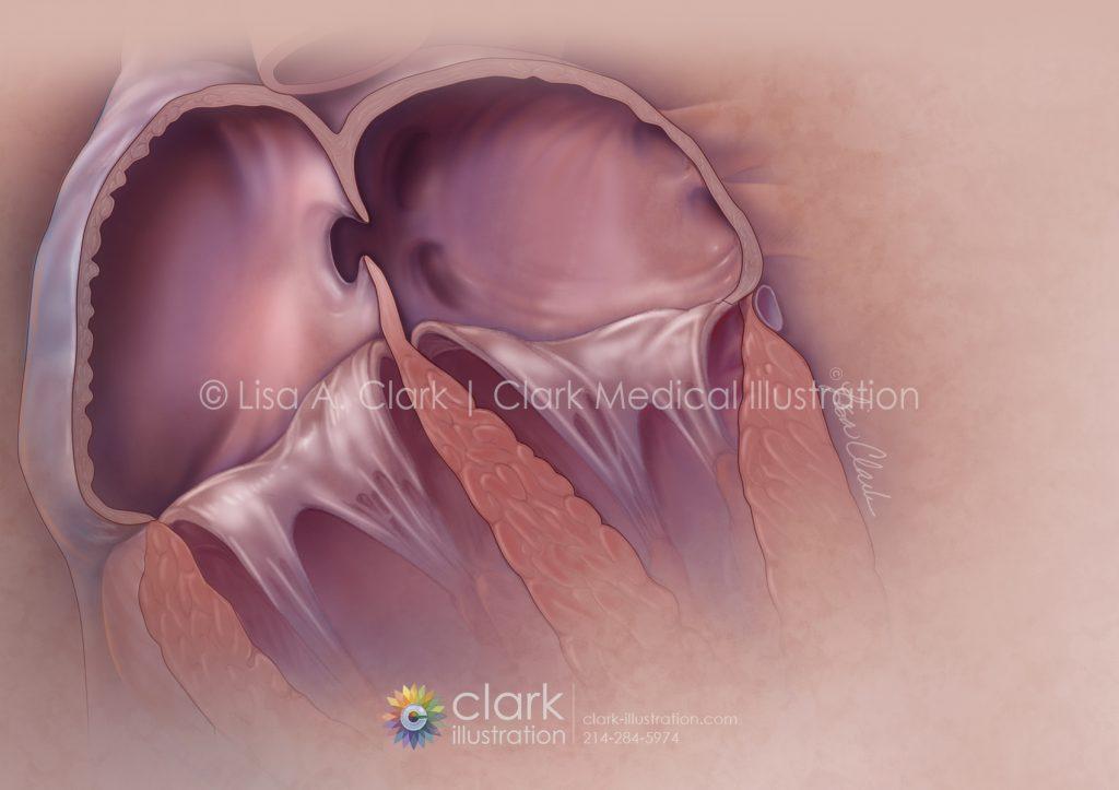 Patent Foramen Ovale (PFO) | ©Lisa A. Clark